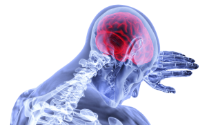 Cranial Nerve Damage Caused by Head Trauma From Car Accidents